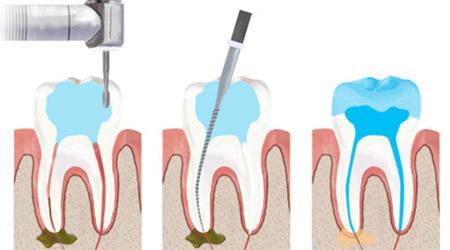 Tratament de canal Bacau