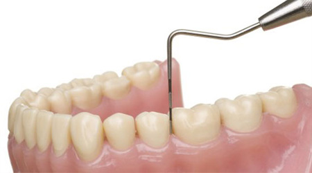 Parodontologie Bacau
