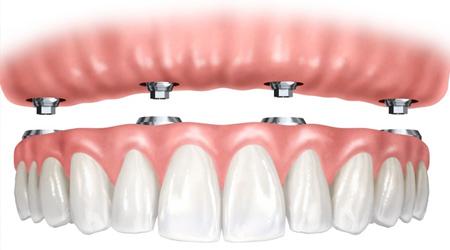 Protetica dentara Bacau