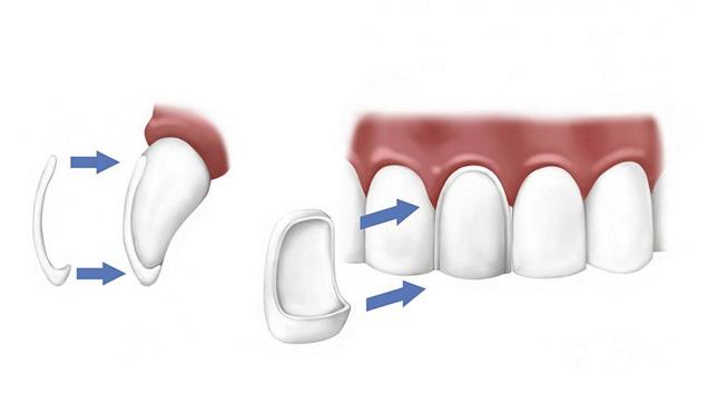 Fatete dentare Bacau