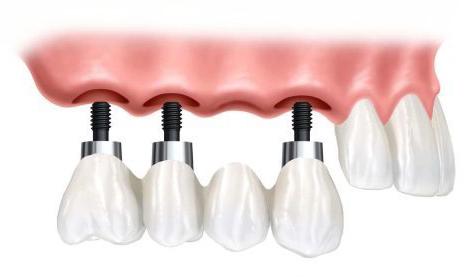 punte implant