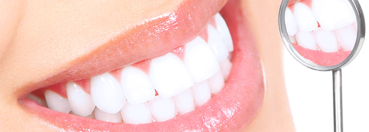 Curatirea dintilor Bacau