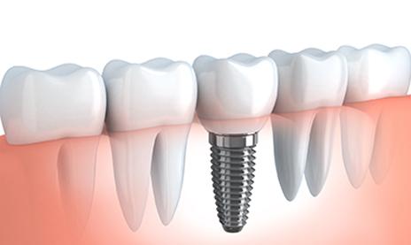 implant molar