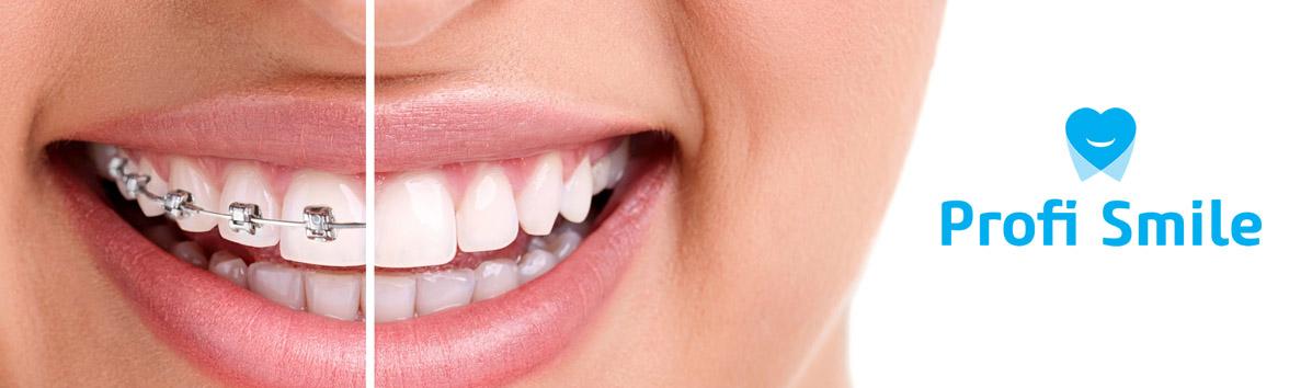 Cabinet Ortodontie - Ortodont Bacau