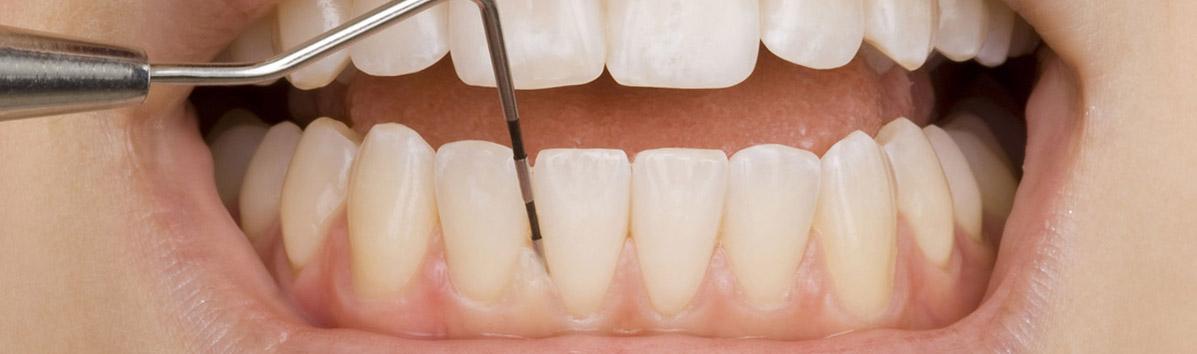 Tratament Parodontoza Bacau