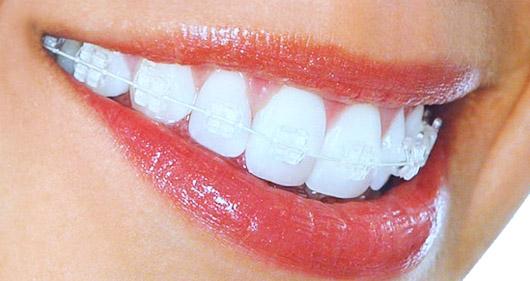 aparat dentar ceramic safir
